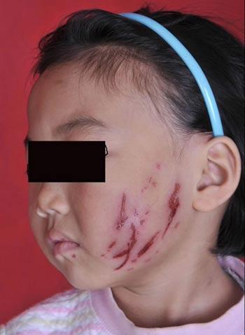 年级老师:交城小学女生将一面目校园抓得暴力小学生材料v年级图片