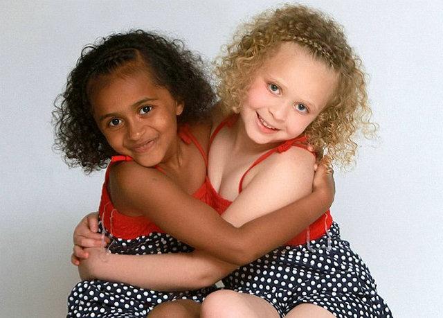 罕见黑白双胞胎