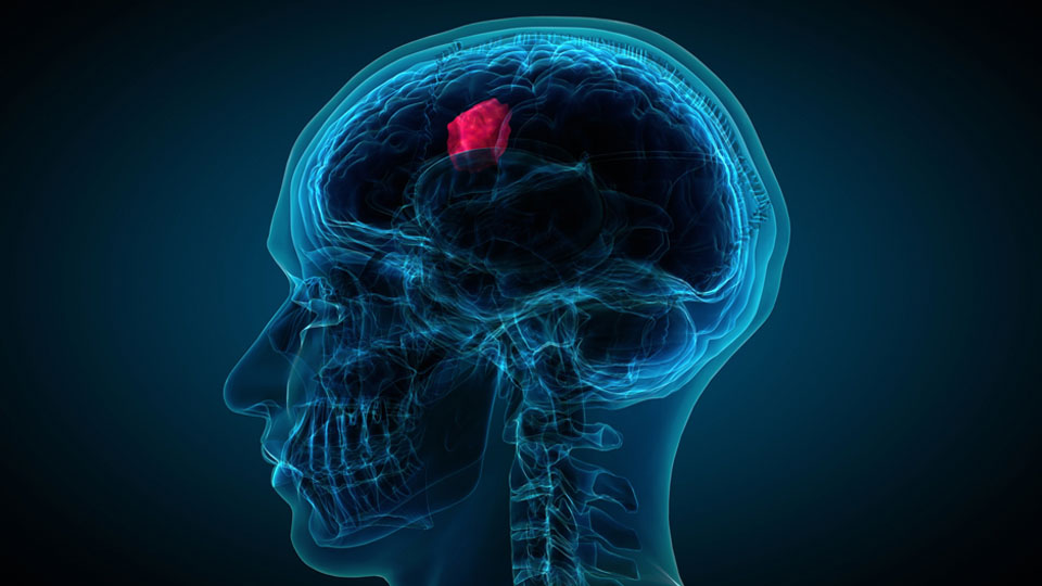 New hope for brain cancer patients 脑肿瘤患者的新希望